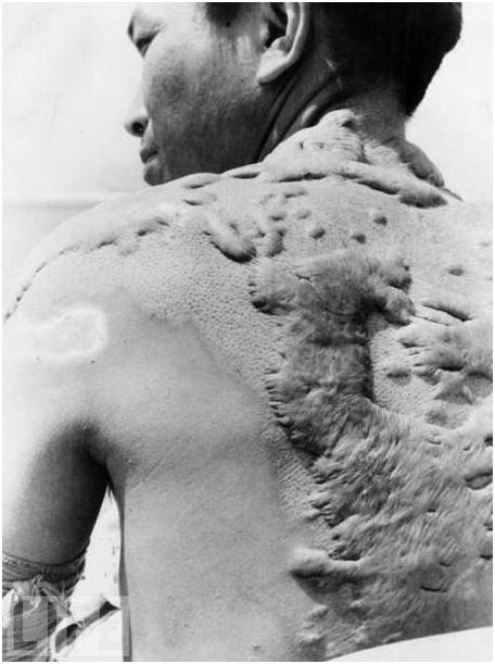 japanisches Opfer Hiroshima