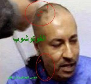 Saadi al Gaddafi mit deutlichen Blessuren